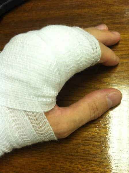 Jeffery's injured hand