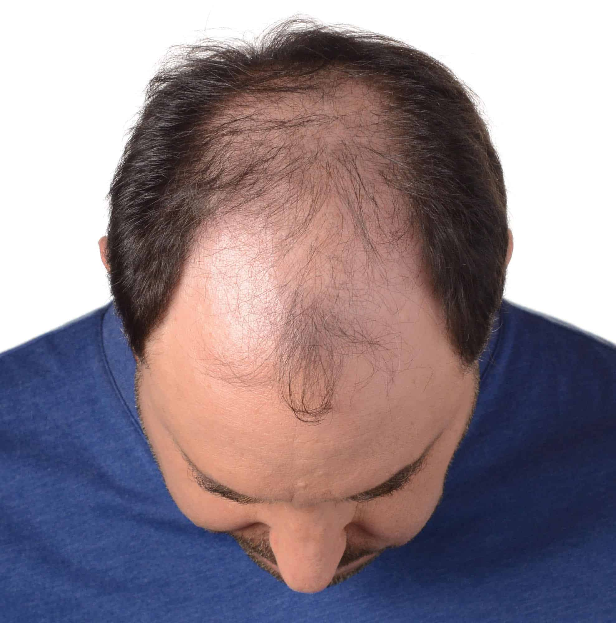 Top 5 Hair Loss Treatments For Men